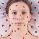 Побочные эффекты прививки от бешенства