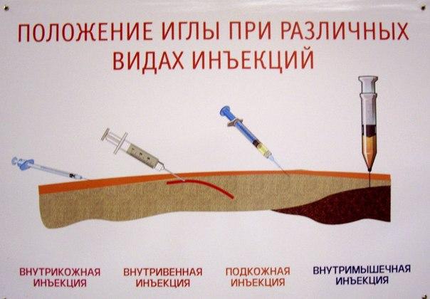 Положение иглы при различных видах иньекции
