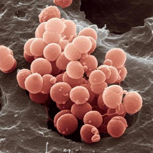 вирус менингита