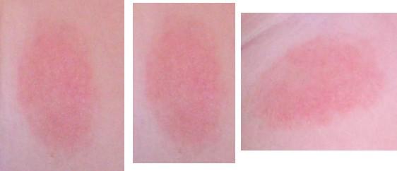 Покраснение на месте укола
