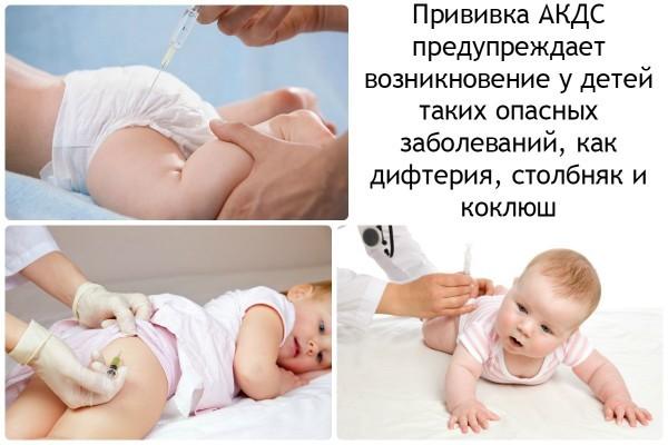 Прививка акдс