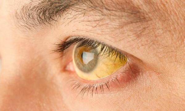 желтый глаз гепатит