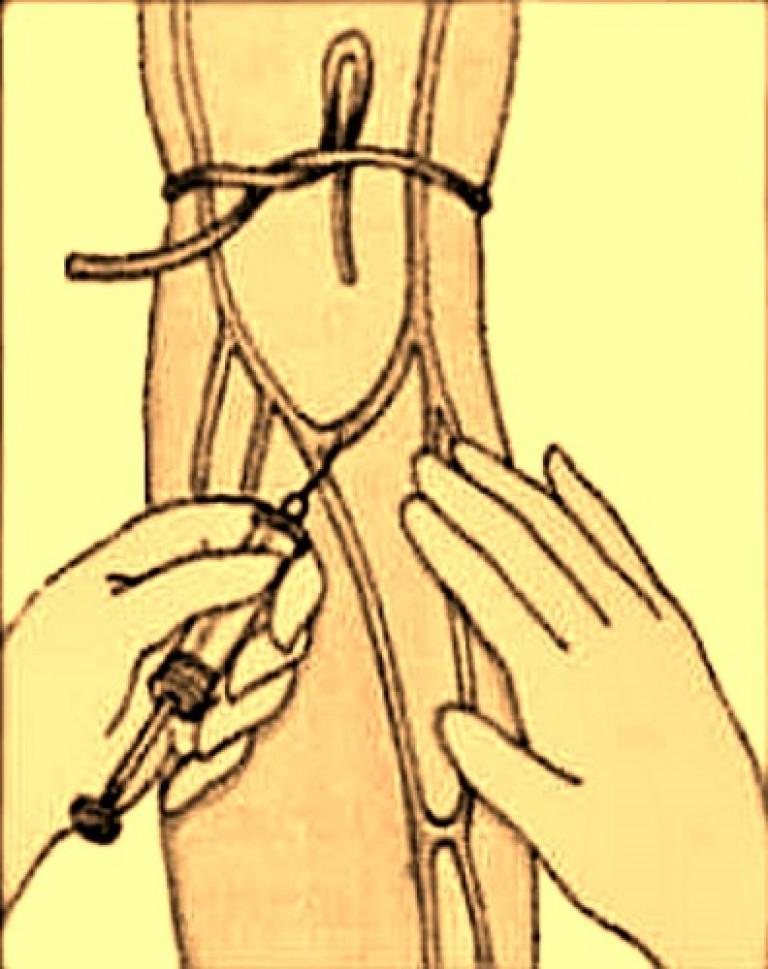Как сделать инъекцию в паху