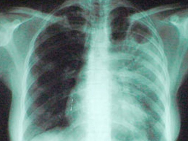 Туберкулёз на рентгене