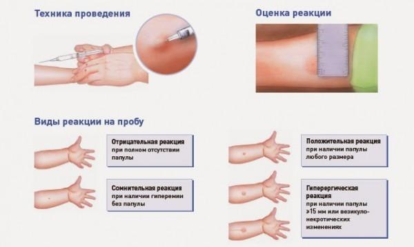 аллергия на туберкулин симптомы