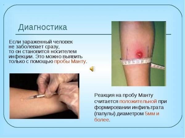 Таблица о диагностике манту