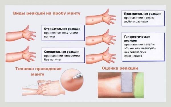 Прививка Манту оценка результатов