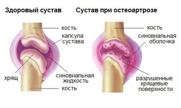 болит сустав колена чем лечить народные средства