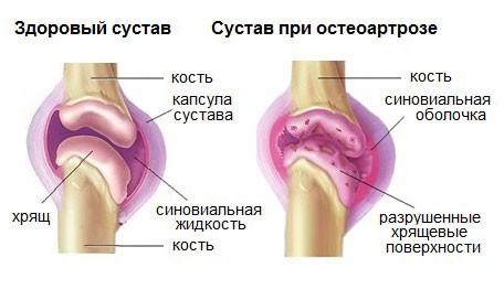 алфлутоп уколы
