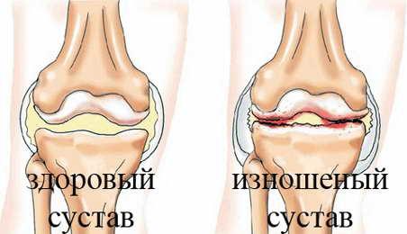 мелоксикам инструкция по применению уколы