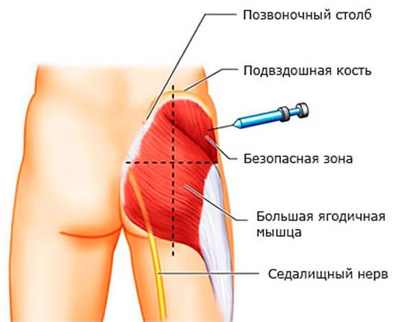 фотаксим инструкция по применению уколы