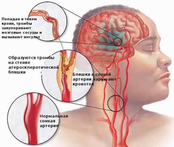 актовегин внутривенно инструкция по применению