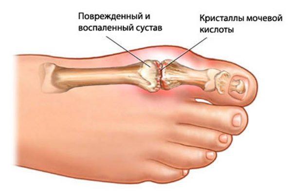кетопрофен инструкция по применению уколы
