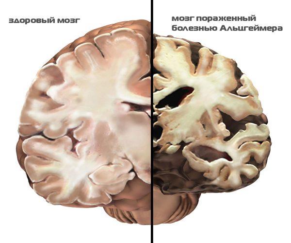 нейромидин инструкция по применению уколы