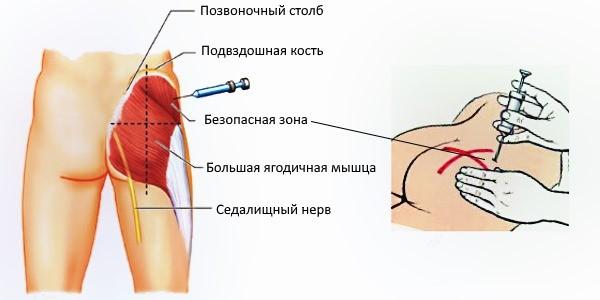 Простакор (уколы): инструкция по применению