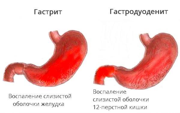 Витамины В12