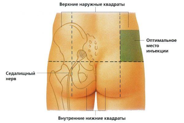 Флексен (уколы)