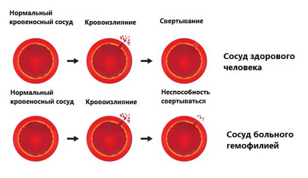 Хаврикс (вакцина)
