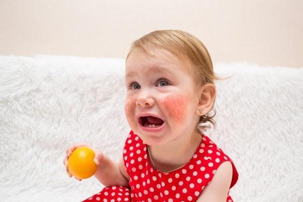 Аллергия у девочки на цитрус