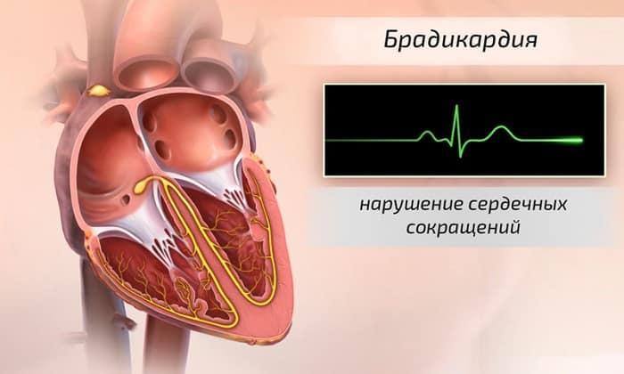 Уколы магнезии внутривенно